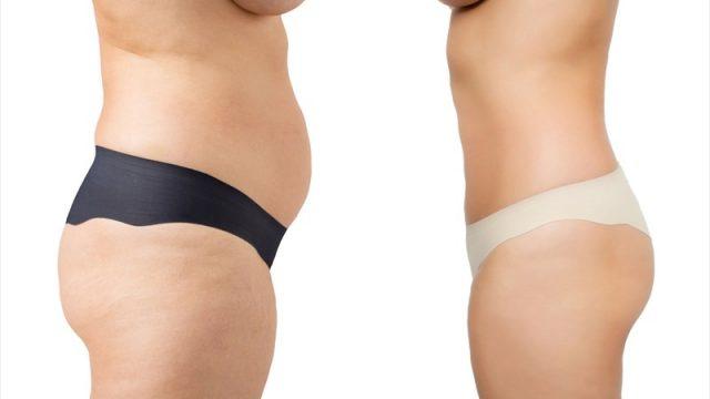 London Liposuction Clinic